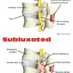 Vertebral Subluxation